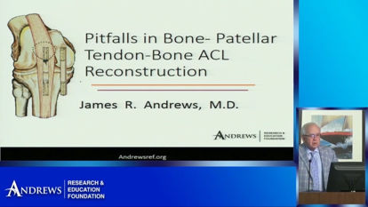 Picture of Pitfalls in Bone-Patellar Tendon- Bone ACL Reconstruction